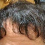 管理人yuuのプロフィールや育毛のきっかけ